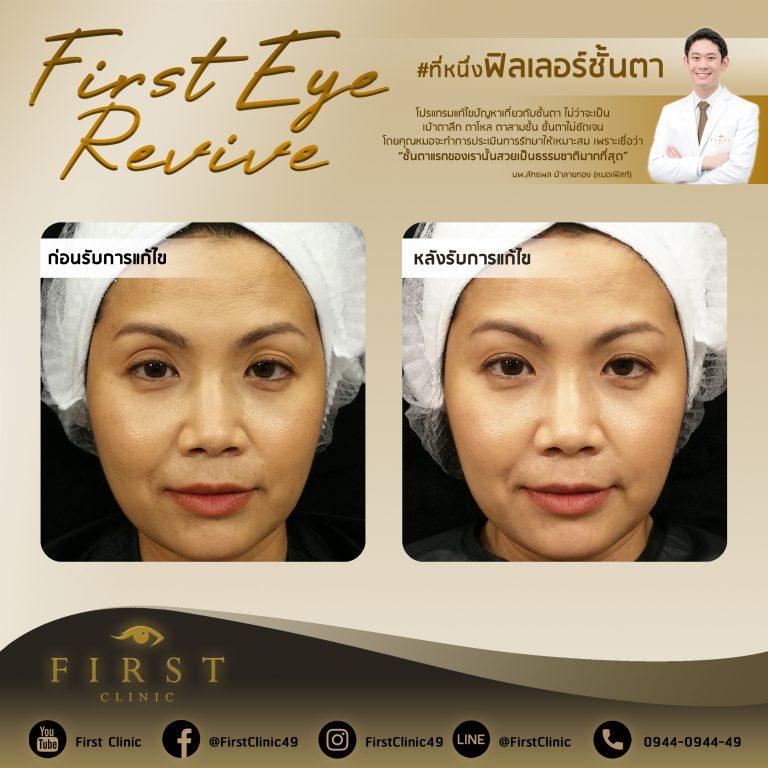 First Eye Revive แก้ไขฟิลเลอร์ตา - First Clinic