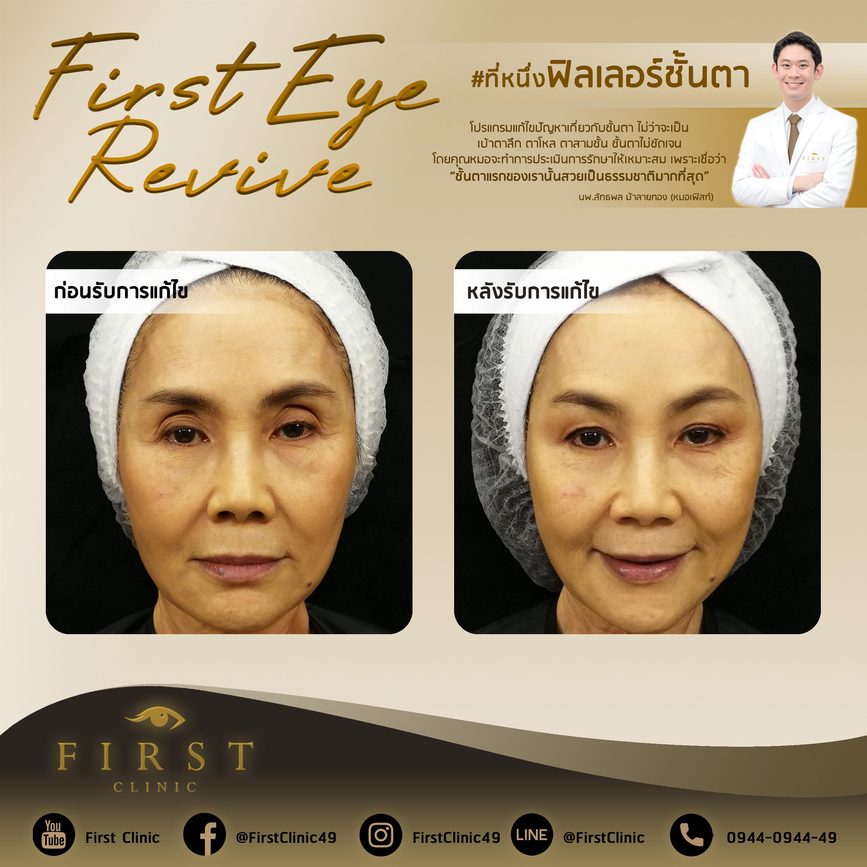 Filler รีวิว - First Clinic