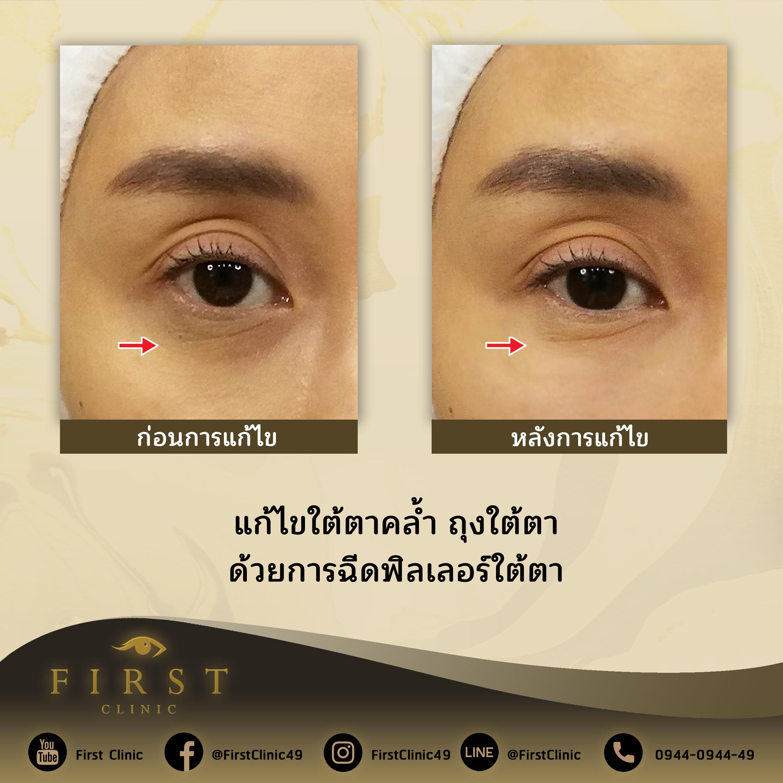 แก้ไขใต้ตา ถุงใต้ตา ด้วยการฉีดฟิลเลอร์ใต้ตา - First Clinic
