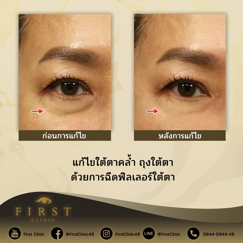แก้ไขใต้ตาคล้ำ ถุงใต้ตา ด้วยการฉีดฟิลเลอร์ใต้ตา - First Clinic