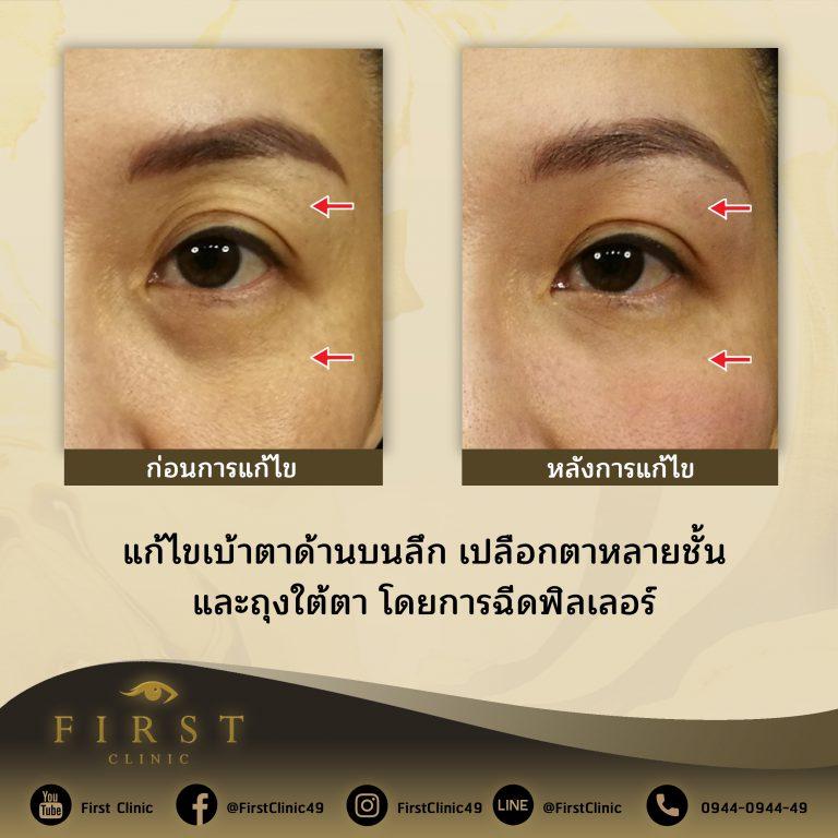 แก้ไขเบ้าตาด้านบนลึก เปลือกตาหลายชั้น และถุงใต้ตา โดยการฉีดฟิลเลอร์ - First Clinic
