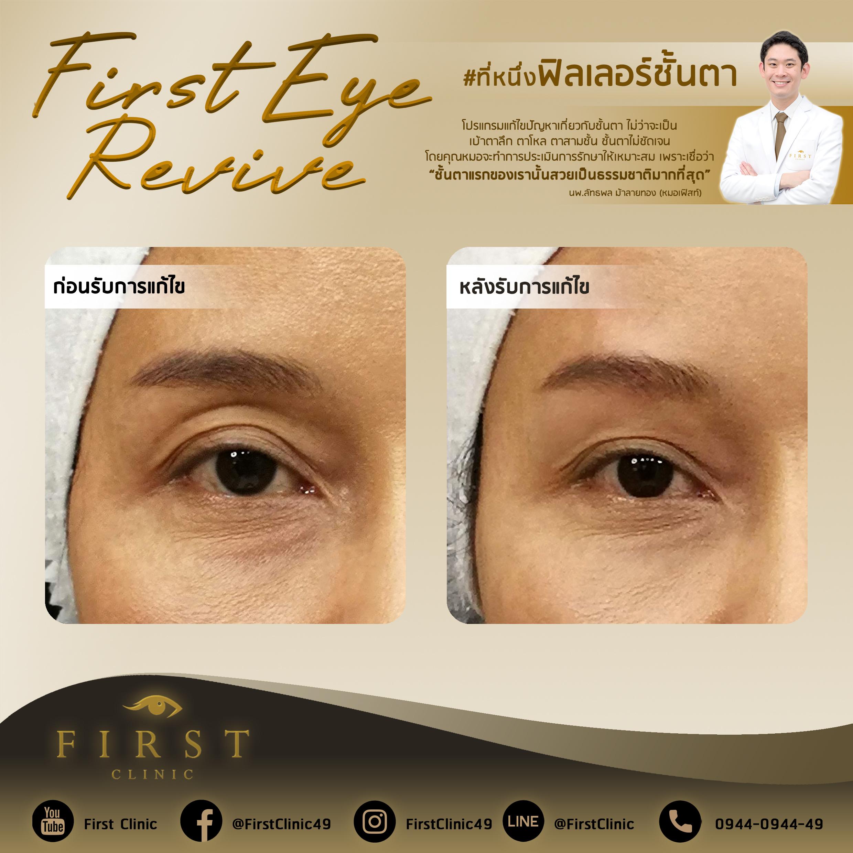 Filler Review แก้ปัญหาชั้นตา - First Clinic
