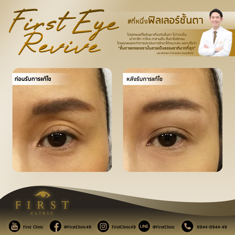 Filler_Review - First Clinic