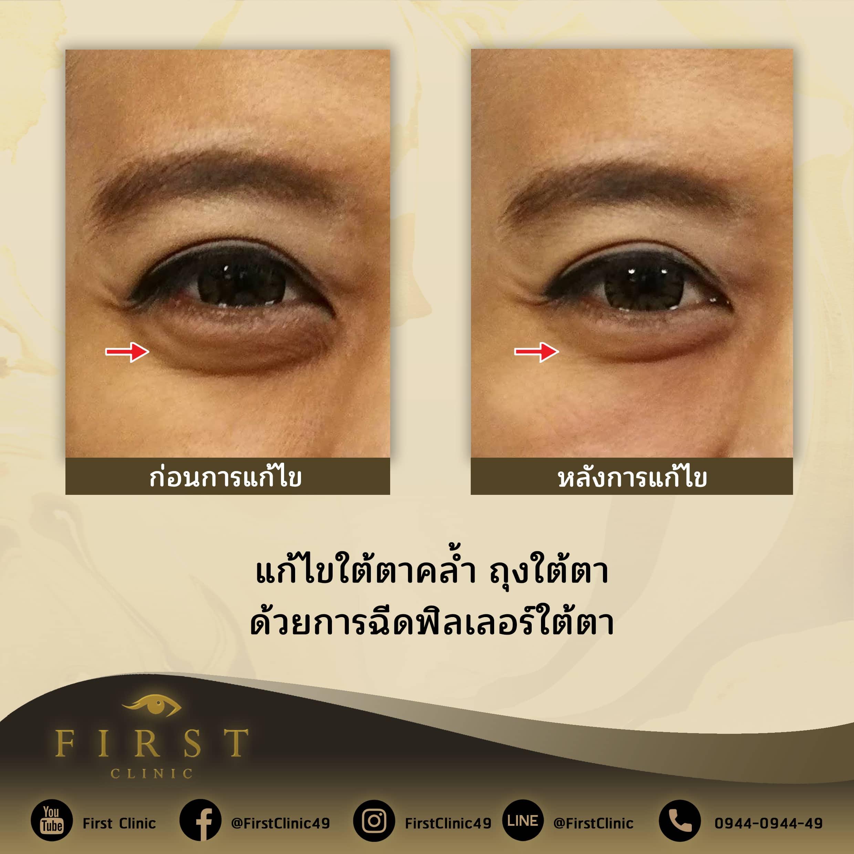 ฉีดฟิลเลอร์ใต้ตา_แก้ไขใต้ตาคล้ำ ถุงใต้ตา - First Clinic