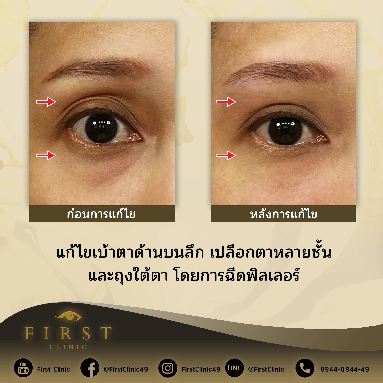 ฉีดฟิลเลอร์รอบดวงตา_แก้ไขถุงใต้ตา ตาด้านบนลึก เปลือกตาหลายชั้้น - First Clinic
