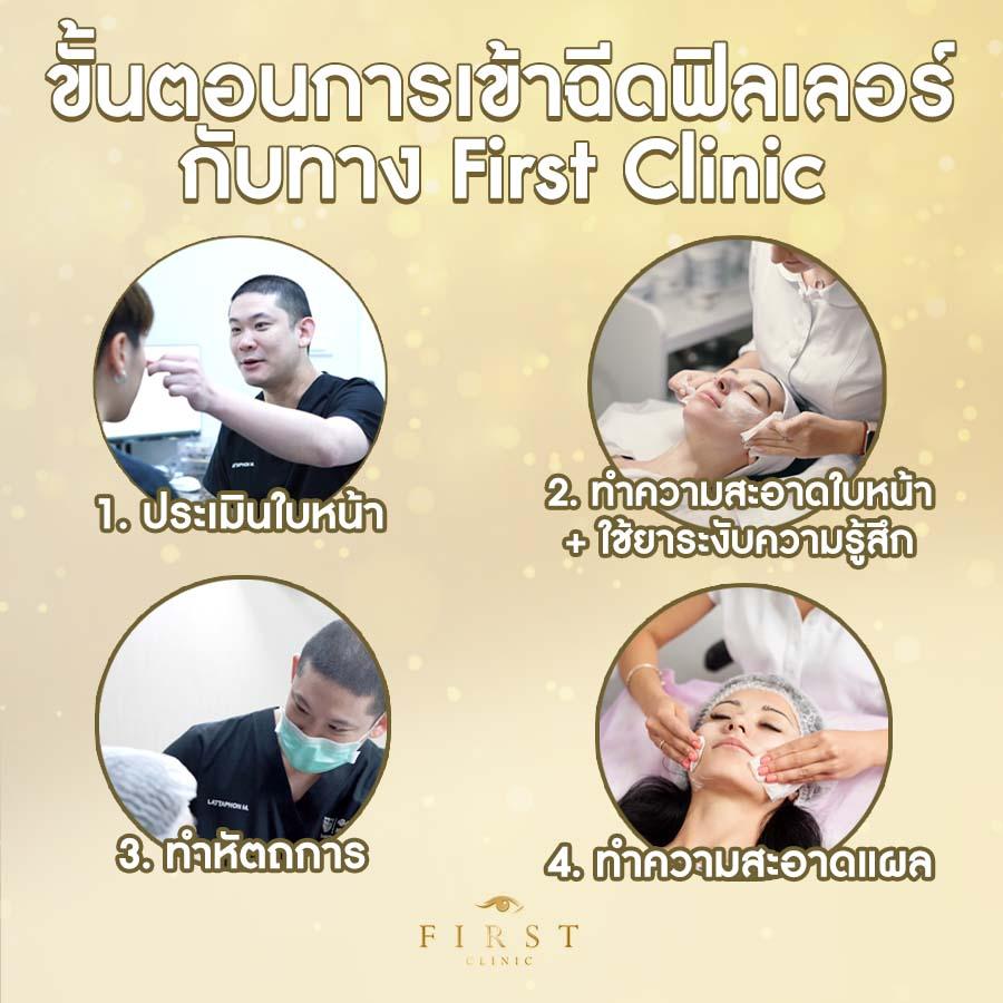 ขั้นตอนการฉีดฟิลเลอร์ (Filler) ที่ - First Clinic