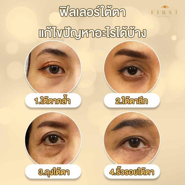 ฉีดฟิลเลอร์ (Filler) ใต้ตาคล้ำ ใต้ตาลึก ถุงใต้ตา ริ้วรอยใต้ตา - First Clinic