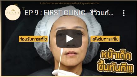 รีวิวทำฟิลเลอร์ตาสองชั้น - First Clinic