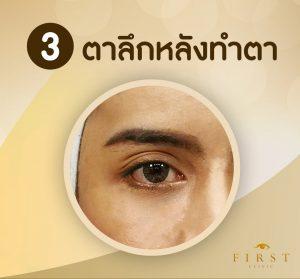ทำฟิลเลอร์ตาสองชั้น แก้ไขตาลึกหลังทำตา - First Clinic