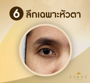 ทำฟิลเลอร์ตาสองชั้น แก้ไขตาลึกเฉพาะหัวตา - First Clinic