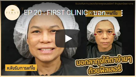 บอกลาถุงใต้ตาง่ายๆ ด้วยฟิลเลอร์ (Filler) - First Clinic