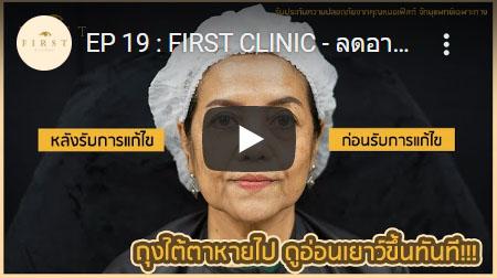 ถุงใต้ตาหายไป ดูอ่อนเยาว์ขึ้นทันที - First Clinic