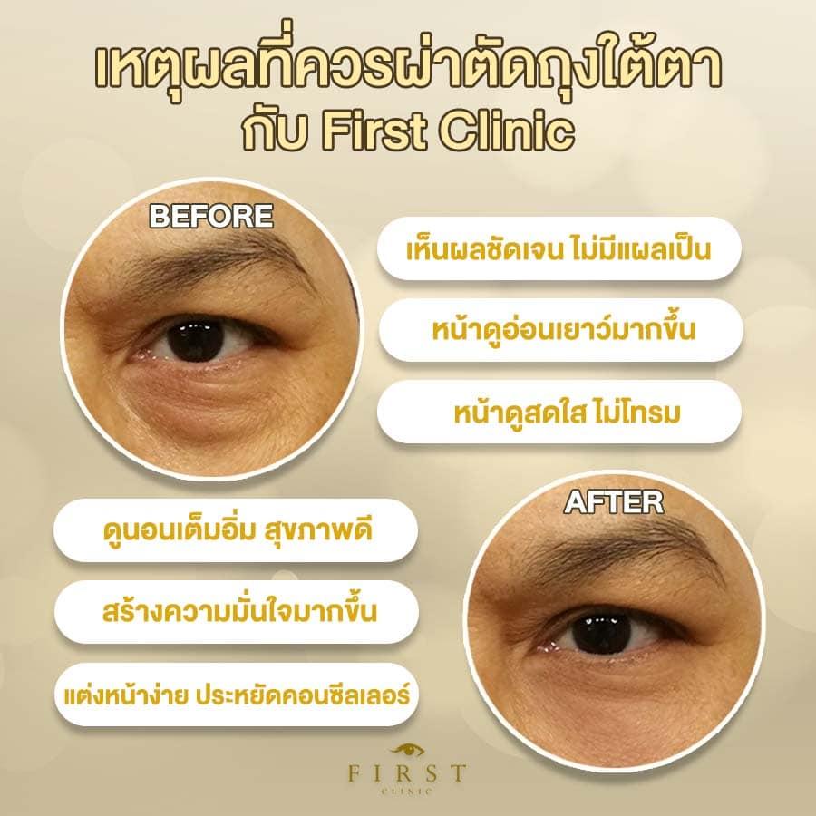 เหตุผลที่ควรกำจัดถุงใต้ตาโดยการผ่าตัดกับ First Clinic